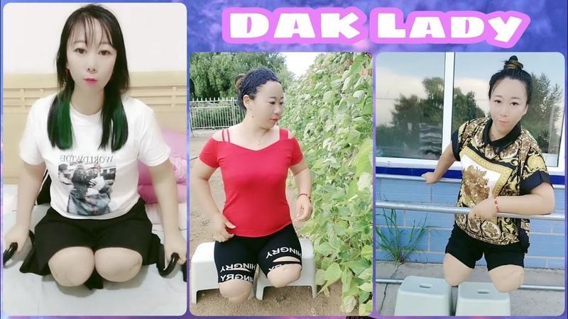 Beautiful leg amputee lady 72512 No legs no limits Cute DAK lady