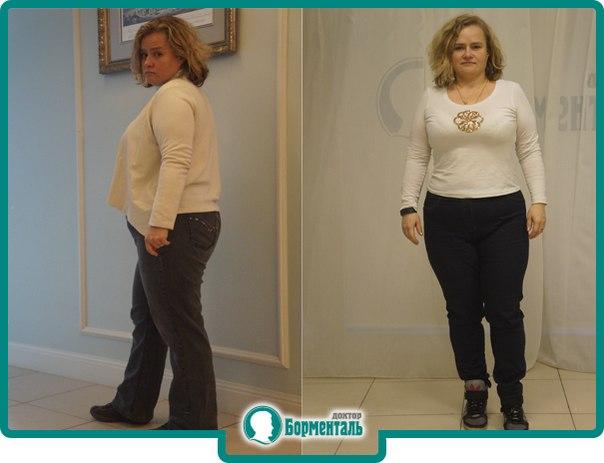 Доктор борменталь система похудения