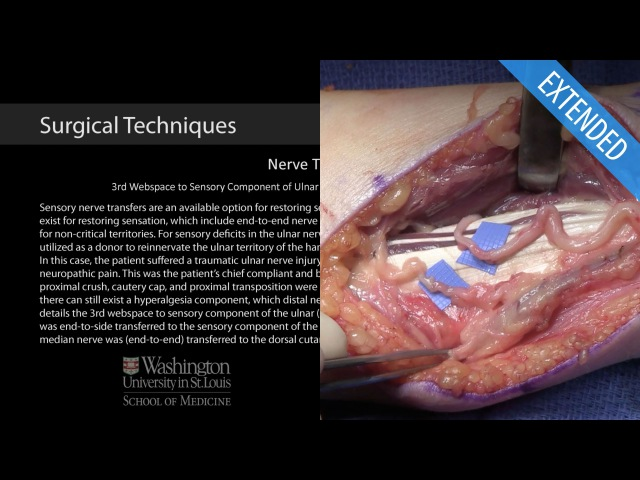 3rd Webspace to Sensory Component of Ulnar Nerve Transfer and PCM to DCU Nerve Transfer - Extended