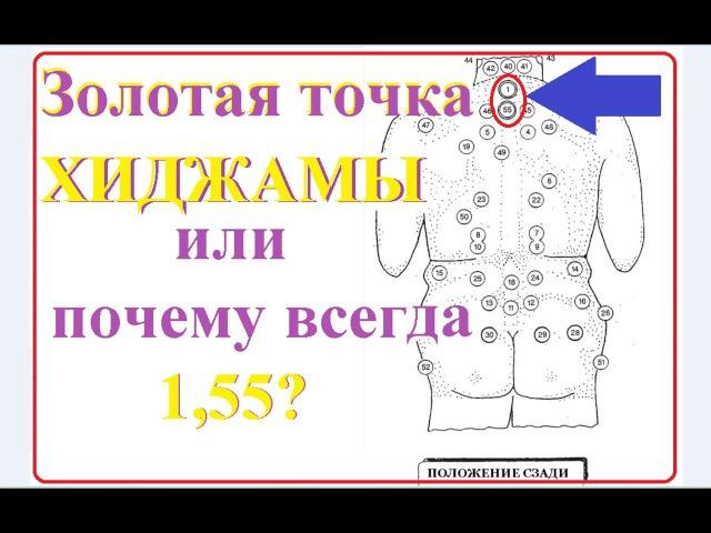 точки для хиджамы для похудения