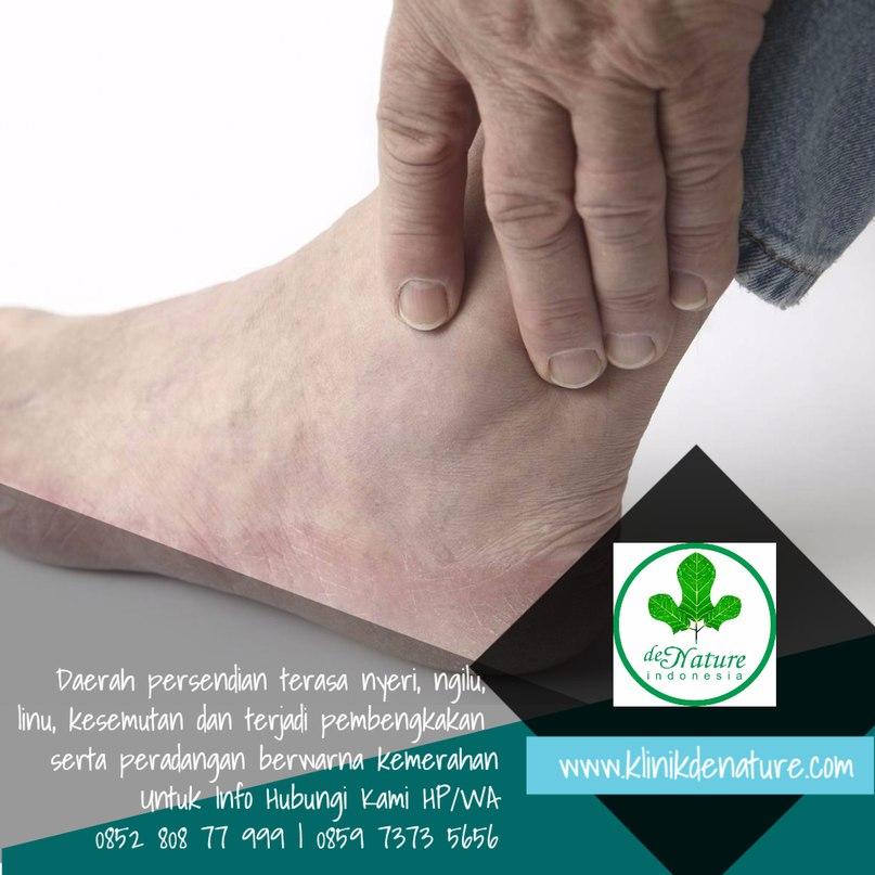 Cara mengatasi cedera engkel kaki