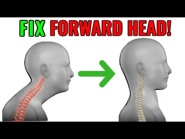 FIX Forward Head Posture! (Daily Corrective Routine)