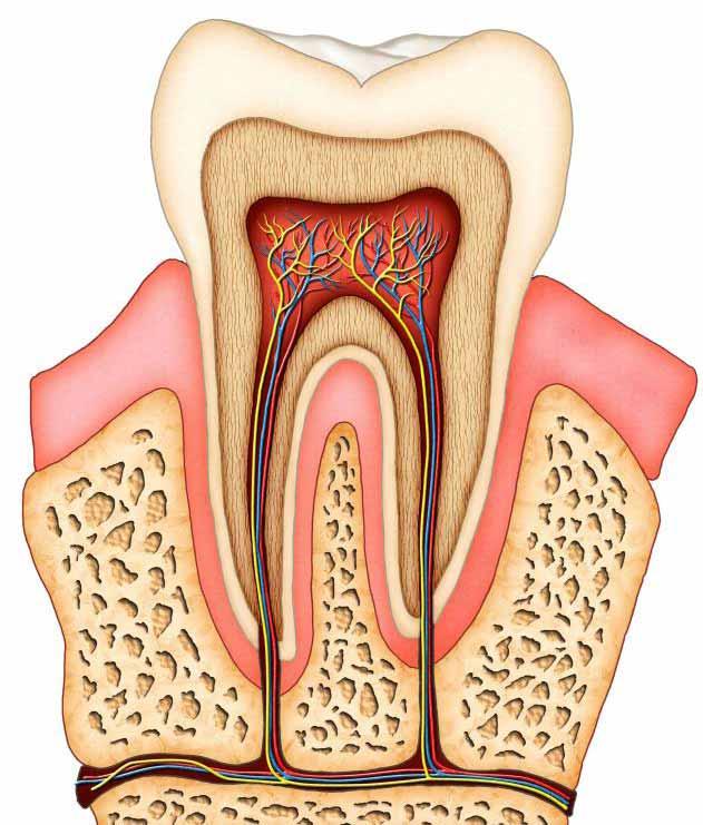 Резорбция зуба часто может привести к тому, что стоматолог выполнит корневой канал