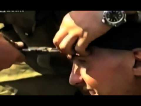Russian soldier smiles for the camera as a bullet is pulled out of his head with PLIERS