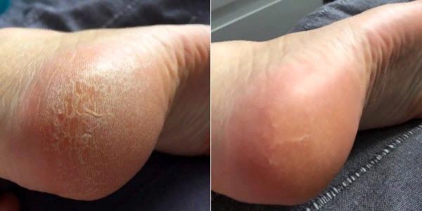 на фото: ступни до и после одной процедуры