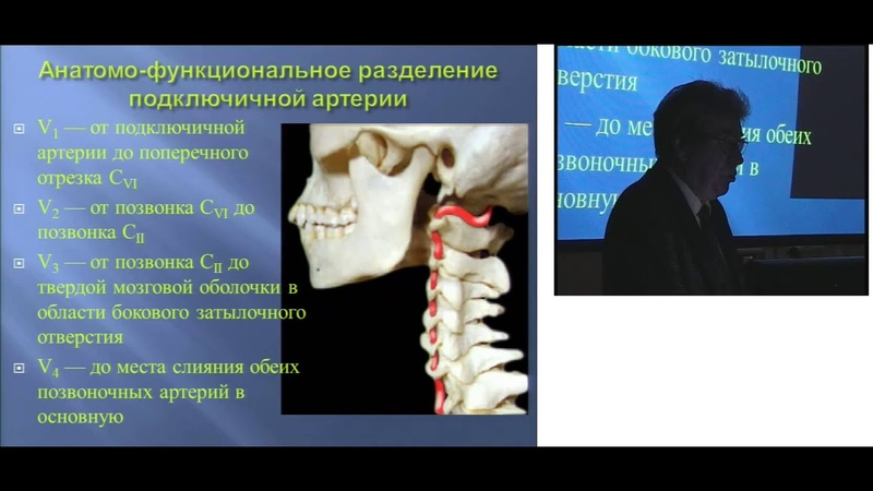 Транзиторная ишемическая атака в вертебробазилярном бассейне д м н проф Р С Мусин