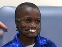 Boy Mauled By Chimps to Undergo Facial Surgery