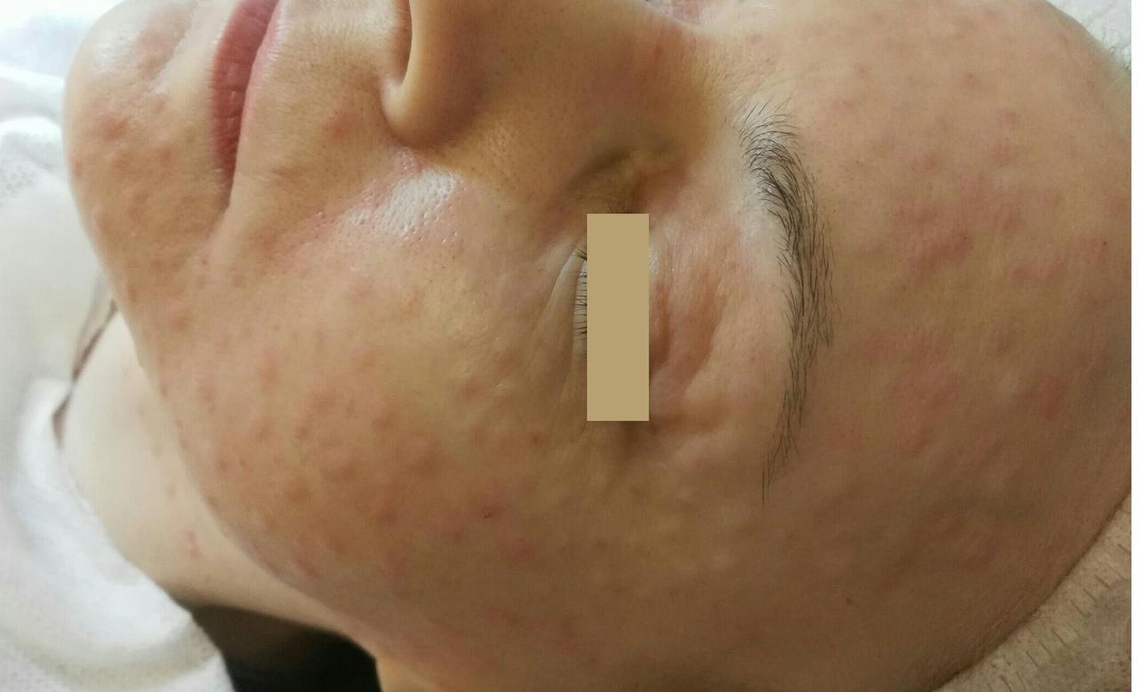 Биоревитализация – процедура, с помощью которой можно очень глубоко и на длительный срок увлажнить кожу.