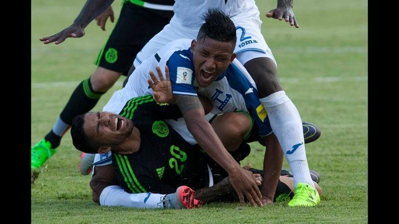 Jogador Hondurenho sofre lesão chocante no joelho